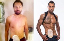 Bodybuilder With Bowel Disease Becomes Model, Colostomy Bag and All