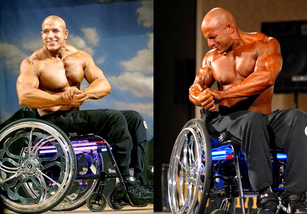 Disabled Bodybuilders: Why Disabilities Don't Need to Get in the Way of Strength
